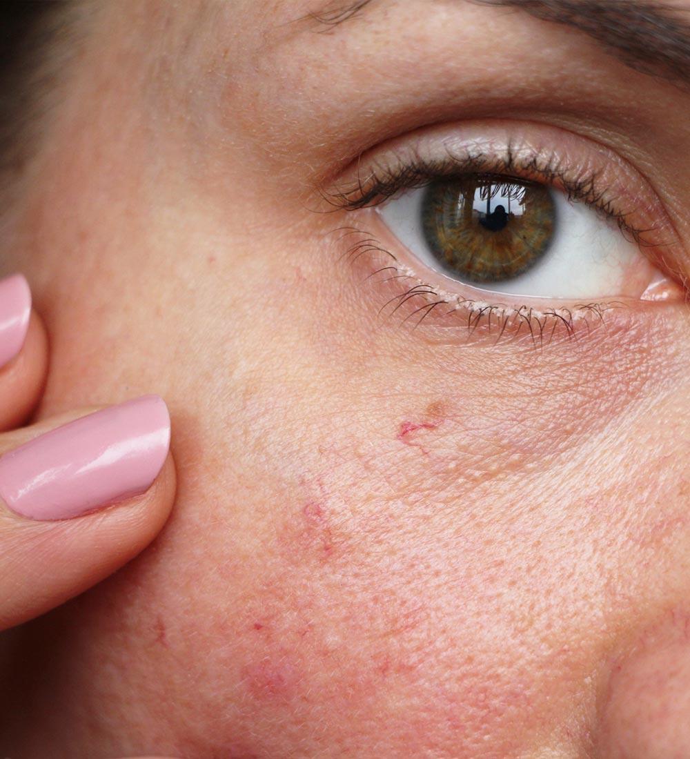 Tratamiento facial con Láser Vascular.